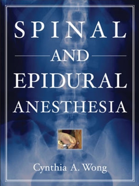 Spinal and Epidural Anesthesia