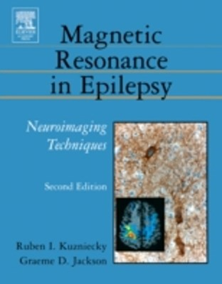 (ebook) Brain Plasticity and Epilepsy: A Tribute to Frank Morrell