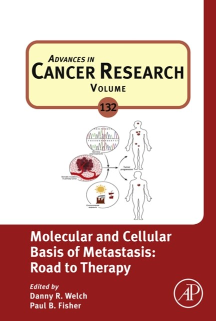 Molecular and Cellular Basis of Metastasis: Road to Therapy