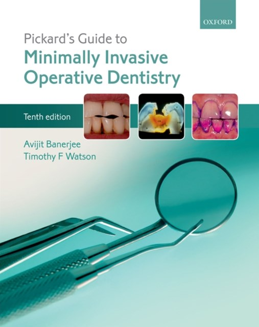 (ebook) Pickard's Guide to Minimally Invasive Operative Dentistry