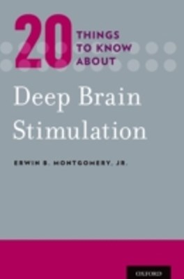 (ebook) 20 Things to Know about Deep Brain Stimulation