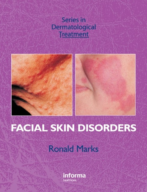 (ebook) Facial Skin Disorders