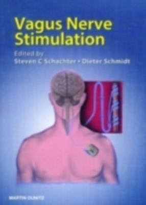 Vagus Nerve Stimulation, Second Edition