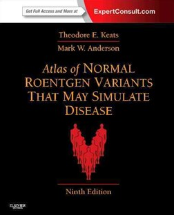 Atlas of Normal Roentgen Variants That May Simulate Disease by Theodore E. Keats, Mark W. Anderson (9780323073554) - HardCover - Reference Medicine