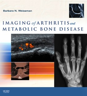 (ebook) Imaging of Arthritis and Metabolic Bone Disease E-Book - Reference Medicine