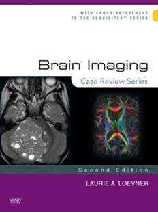 (ebook) Brain Imaging: Case Review Series E-Book - Reference Medicine