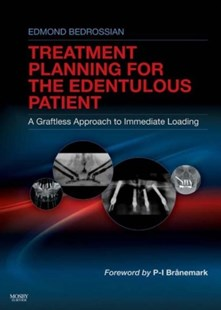 (ebook) Implant Treatment Planning for the Edentulous Patient - E-Book - Reference Medicine