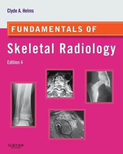 (ebook) Fundamentals of Skeletal Radiology E-Book - Reference Medicine