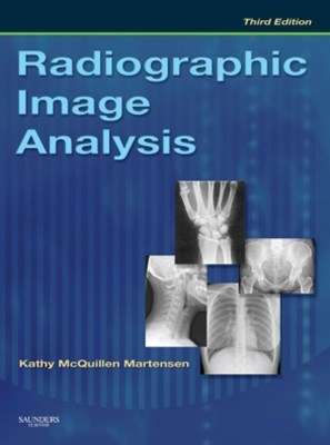 (ebook) Radiographic Image Analysis - E-Book