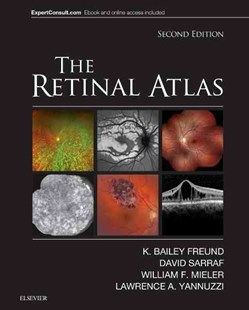 Retinal Atlas by K. Bailey Freund, David Sarraf, William F. Mieler, Lawrence A. Yannuzzi (9780323287920) - HardCover - Reference Medicine