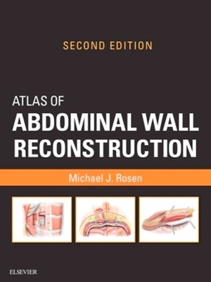 Atlas of Abdominal Wall Reconstruction E-Book