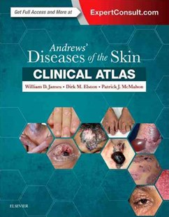Andrews' Diseases of the Skin Clinical Atlas by William D. James, Patrick J McMahon, Patrick J. McMahon (9780323441964) - HardCover - Reference Medicine