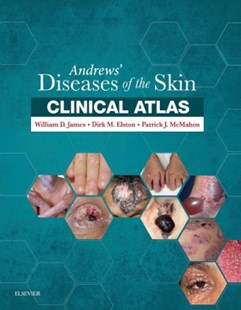 (ebook) Andrews' Diseases of the Skin Clinical Atlas E-Book - Reference Medicine