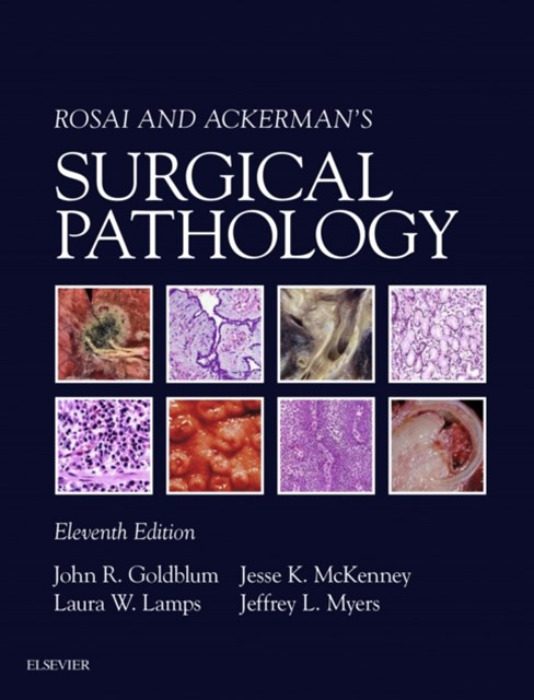 (ebook) Rosai and Ackerman's Surgical Pathology E-Book