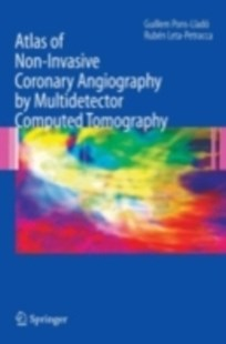 (ebook) Atlas of Non-Invasive Coronary Angiography by Multidetector Computed Tomography - Reference Medicine