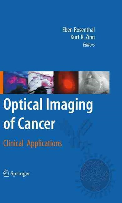 Optical Imaging of Cancer