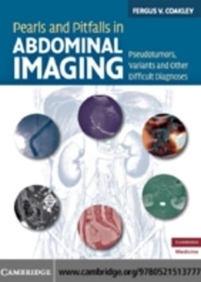 (ebook) Pearls and Pitfalls in Abdominal Imaging