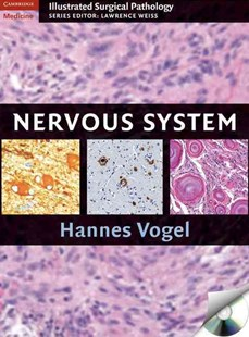 Nervous System by Hannes Vogel (9780521881616) - HardCover - Reference Medicine