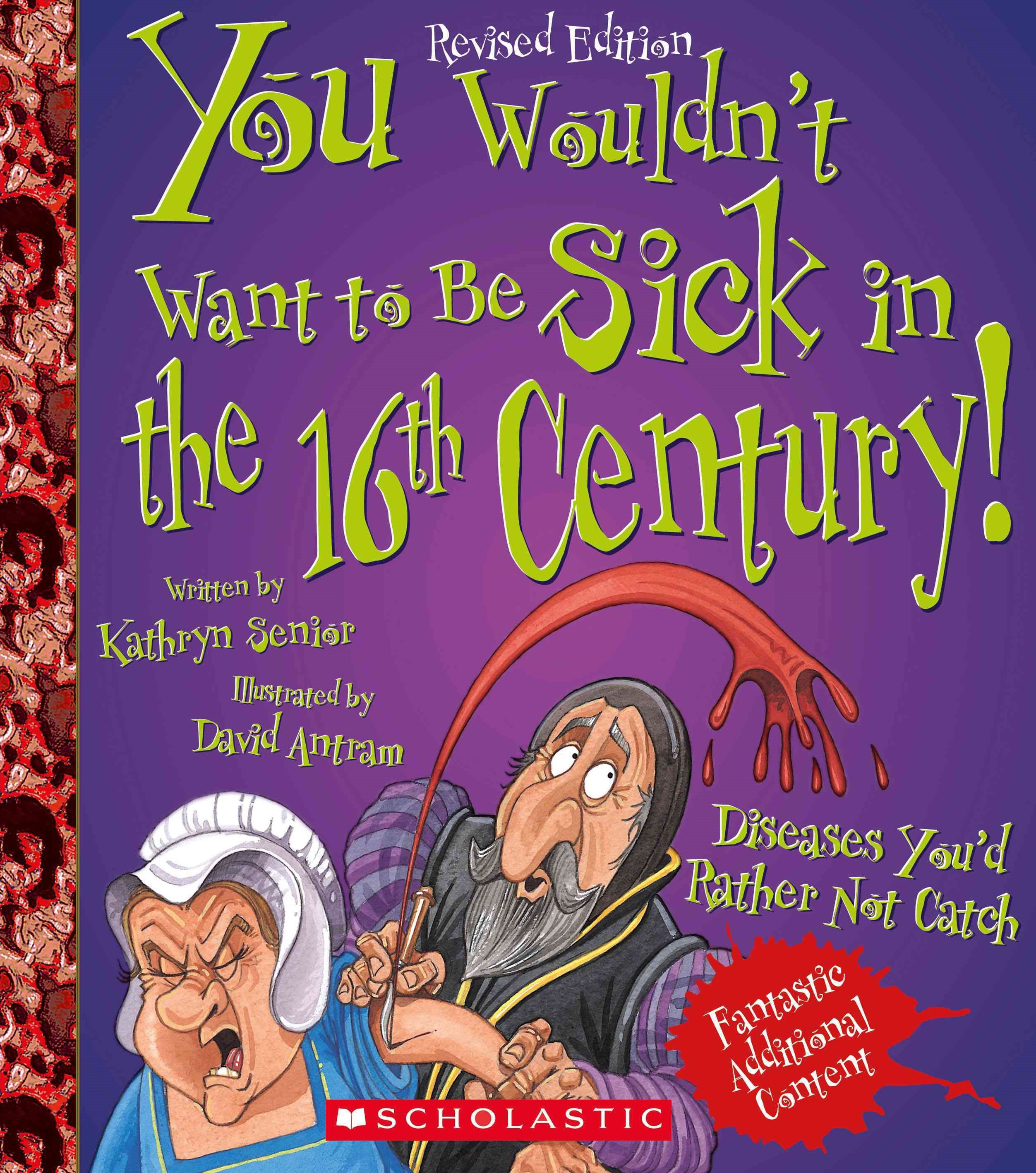 You Wouldn't Want to Be Sick in the 16th Century! (Revised Edition)