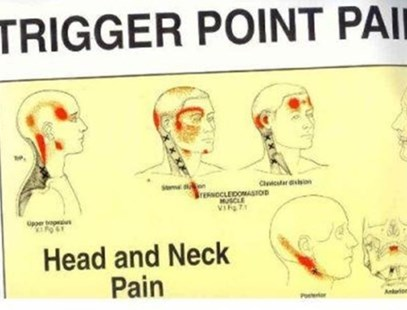 Trigger Point Pain Patterns Wall Charts by Janet G. Travell, David G. Simons (9780683083682) - PaperBack - Reference Medicine