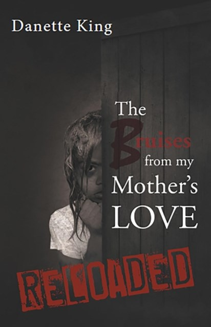 (ebook) Bruises from my Mother's Love