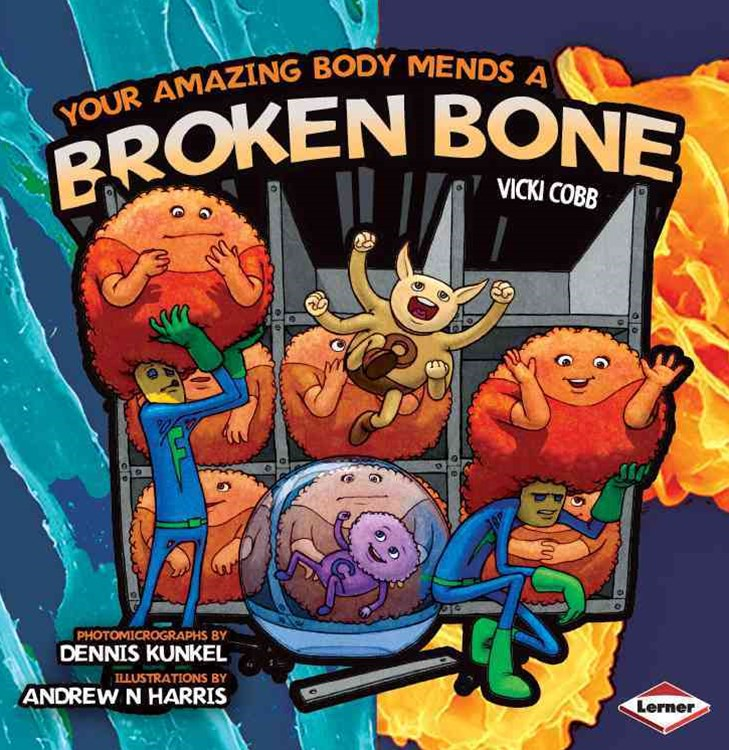 Your Amazing Body Mends a Broken Bone