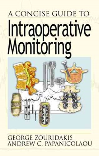 Concise Guide to Intraoperative Monitoring
