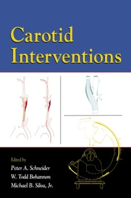 Carotid Interventions