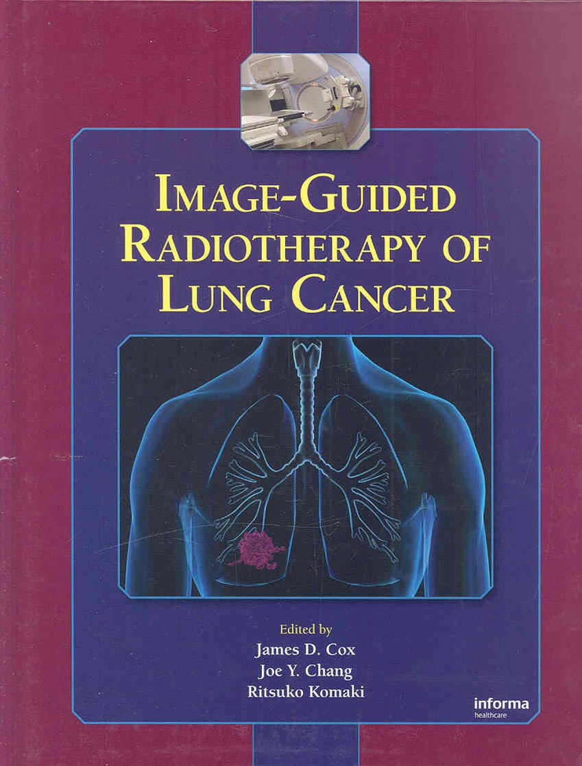 Image-Guided Radiotherapy of Lung Cancer