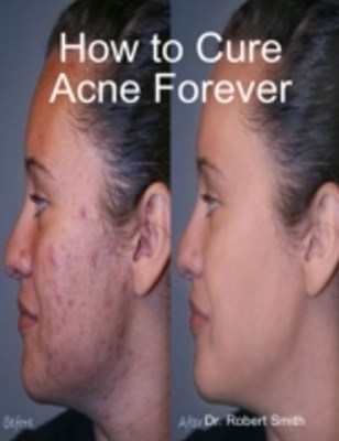 (ebook) How to Cure Acne Forever