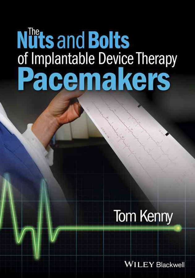 The Nuts and Bolts of Implantable Device Therapy -Pacemakers