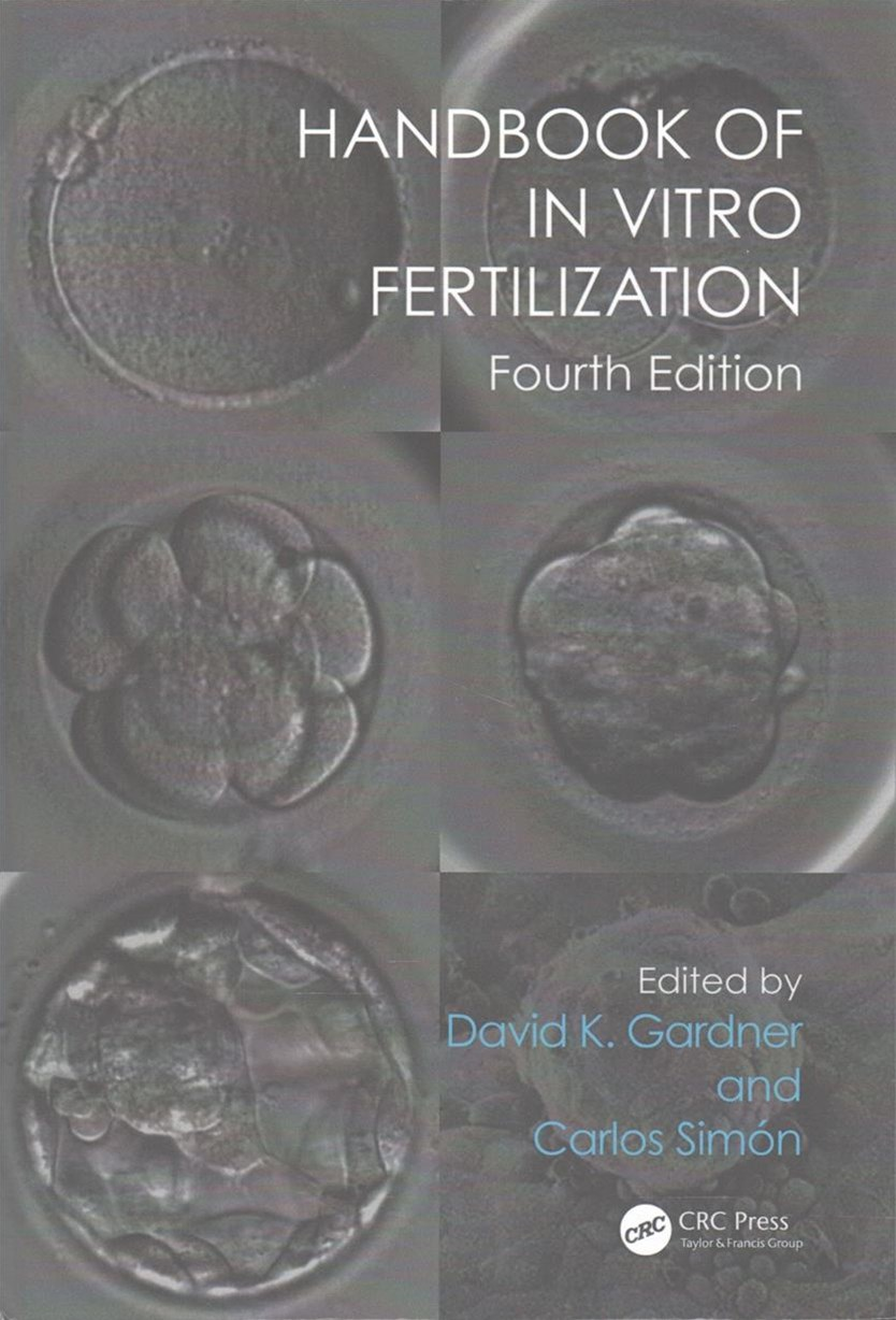 Handbook of in Vitro Fertilization