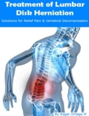 (ebook) Treatment of Lumbar Disk Herniation