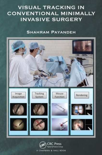 (ebook) Visual Tracking in Conventional Minimally Invasive Surgery