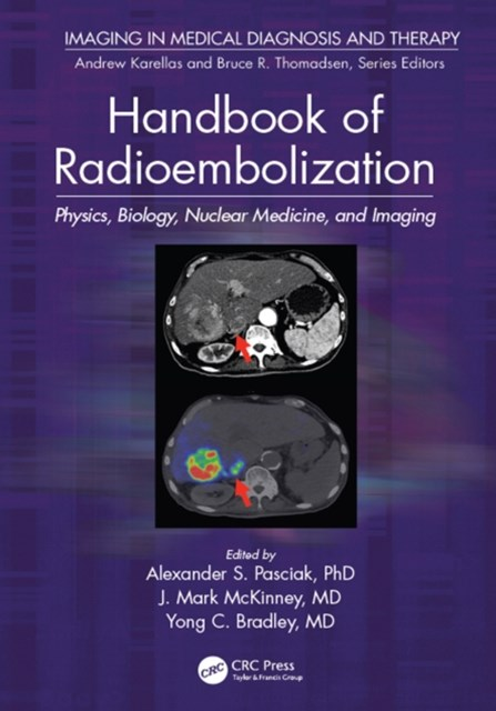 (ebook) Handbook of Radioembolization