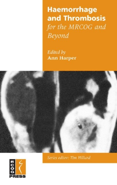 (ebook) Haemorrhage and Thrombosis for the MRCOG and Beyond