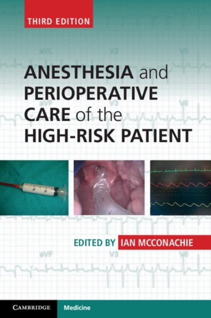 (ebook) Anesthesia and Perioperative Care of the High-Risk Patient