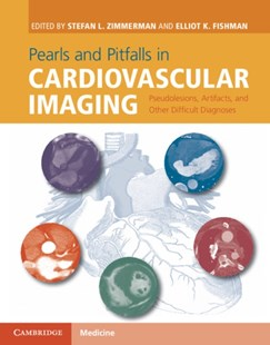 (ebook) Pearls and Pitfalls in Cardiovascular Imaging - Reference Medicine