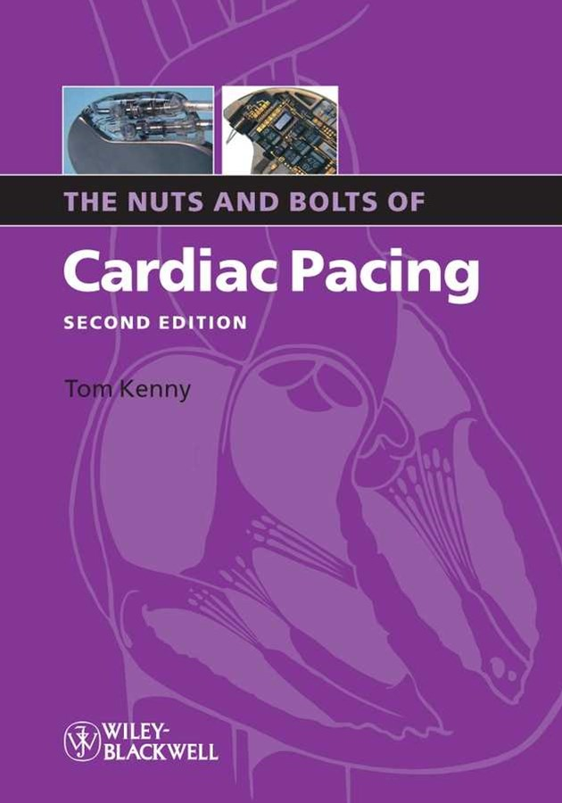 The Nuts and Bolts of Cardiac Pacing 2E