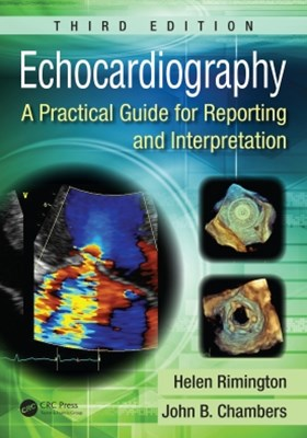 (ebook) Echocardiography