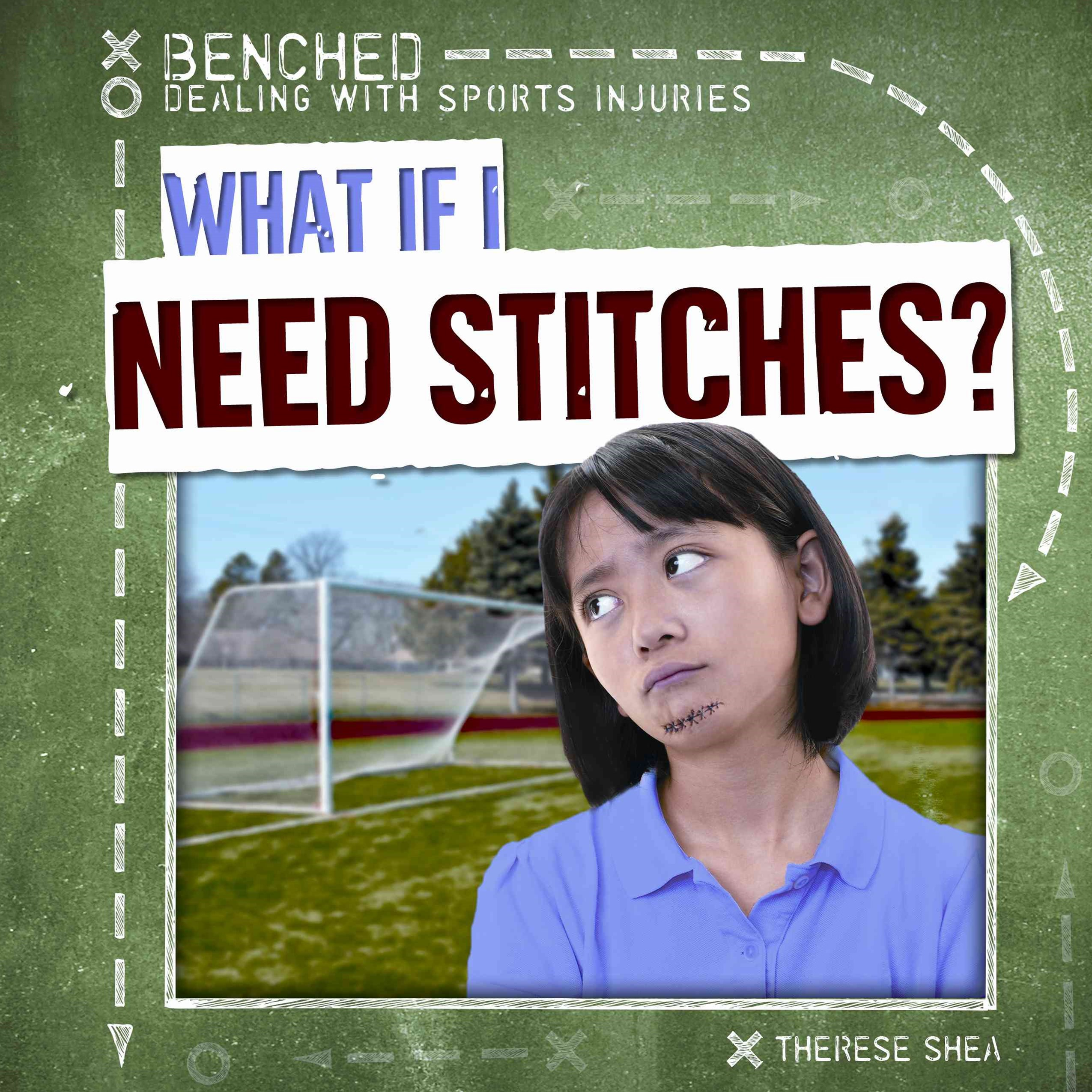 What If I Need Stitches?