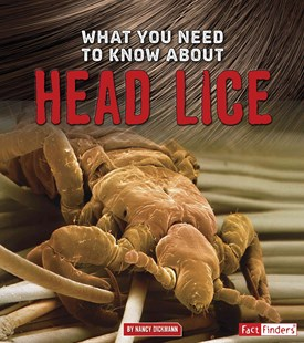What You Need To Know About: Head Lice - Non-Fiction Family Matters