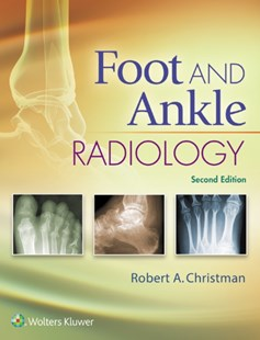 (ebook) Foot and Ankle Radiology - Reference Medicine