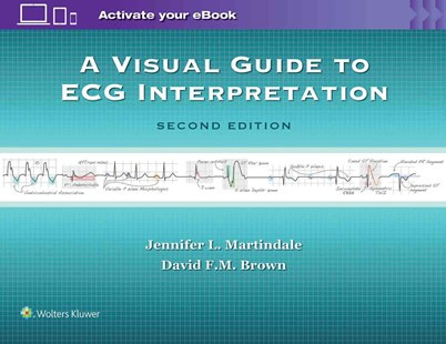 Visual Guide to ECG Interpretation by Jennifer L MartindaleMD, David F. M. Brown (9781496321534) - PaperBack - Reference Medicine