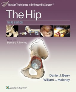 (ebook) Master Techniques in Orthopaedic Surgery: The Hip - Reference Medicine
