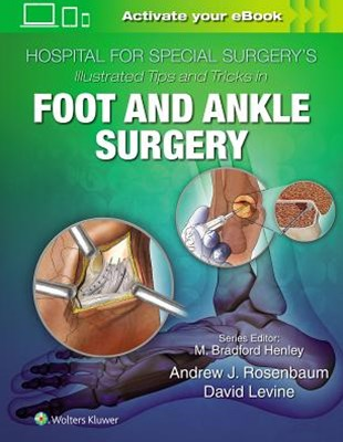 Hospital for Special Surgery's Tips and Tricks in Foot and Ankle Surgery