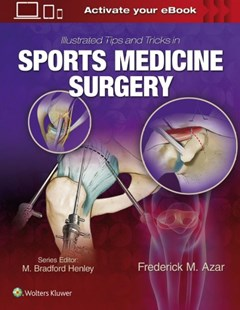 Illustrated Tips and Tricks in Sports Medicine Surgery by Frederick Azar (9781496375414) - HardCover - Reference Medicine