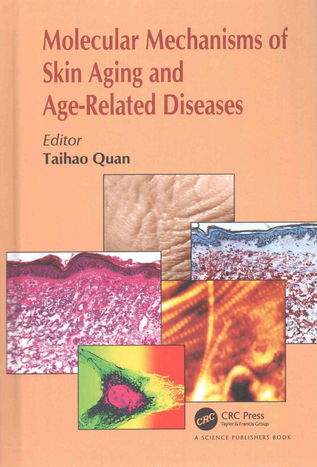 Molecular Mechanisms of Skin Aging and Age-Related Diseases