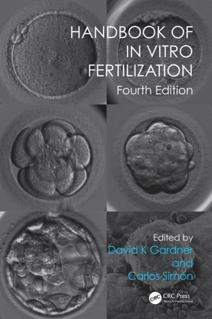 Handbook of In Vitro Fertilization, Fourth Edition
