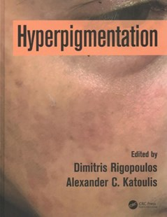 Hyperpigmentation by Rigopoulos, Dimitris (EDT)/ Katoulis, Alexander C. (EDT), Alexander C. Katoulis (9781498740173) - HardCover - Reference Medicine